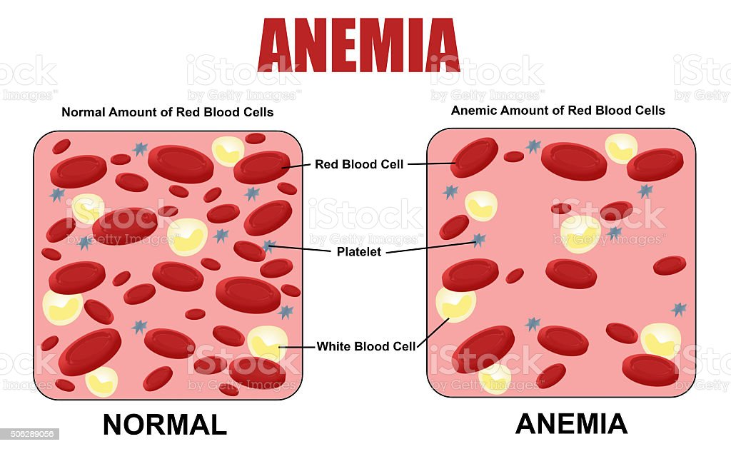 Anemia diagram vector art illustration