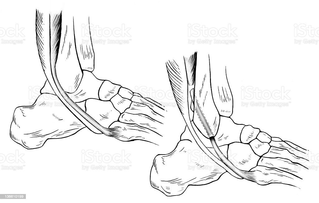 Ankle - Sprained royalty-free stock vector art