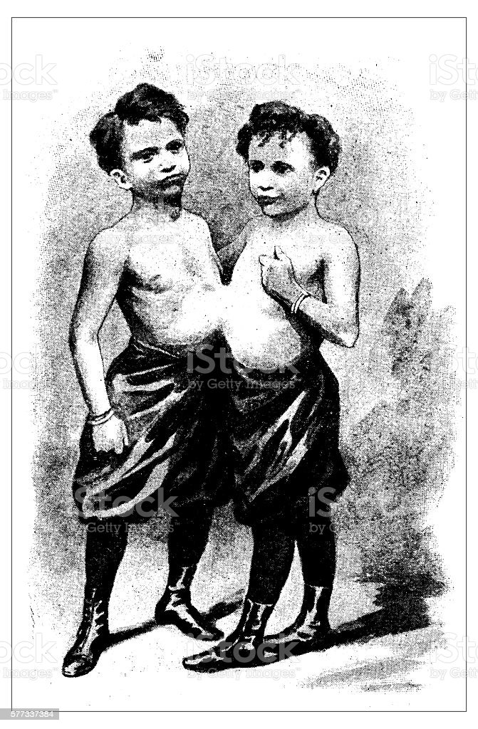 Antique illustration of Conjoined twins vector art illustration