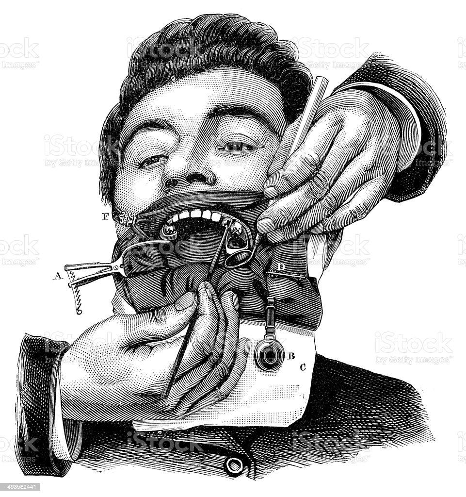 Antique medical scientific illustration high-resolution: dentist vector art illustration