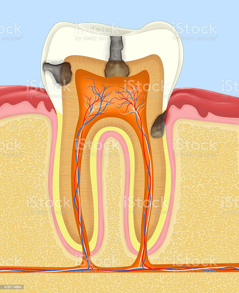 carious human tooth vector art illustration