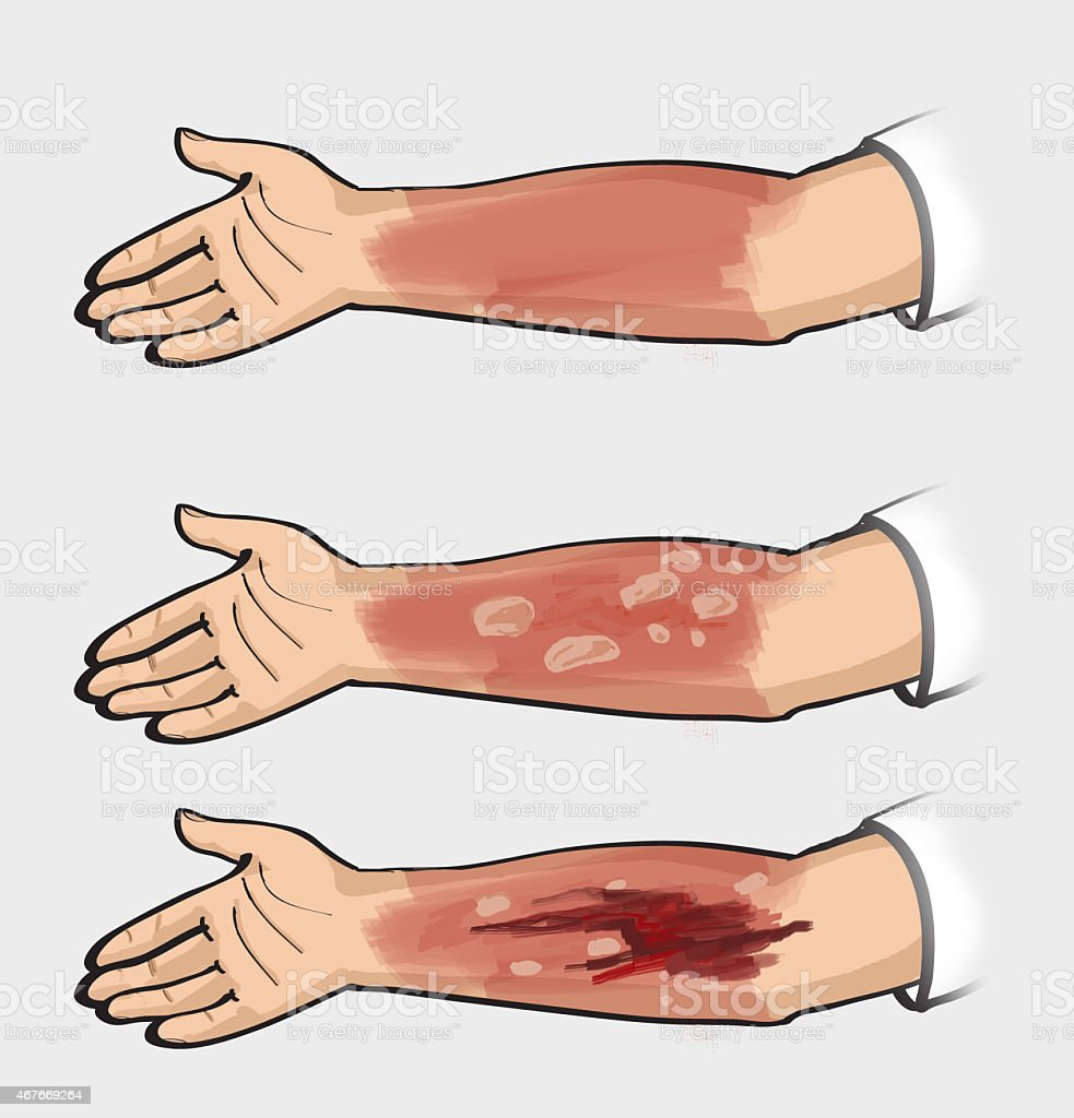 Classification of burns. Thermal injuries. vector art illustration