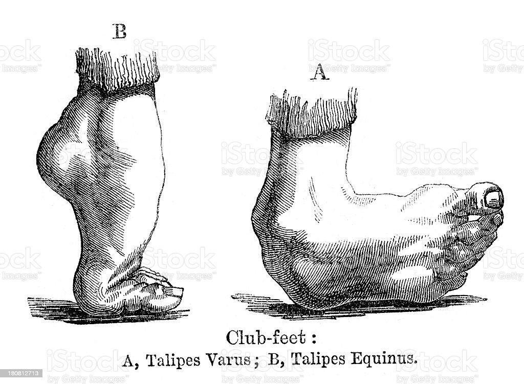 Club foot vector art illustration