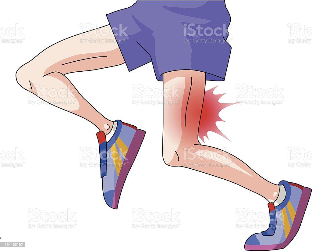Common running injuries Hamstring strain royalty-free stock vector art