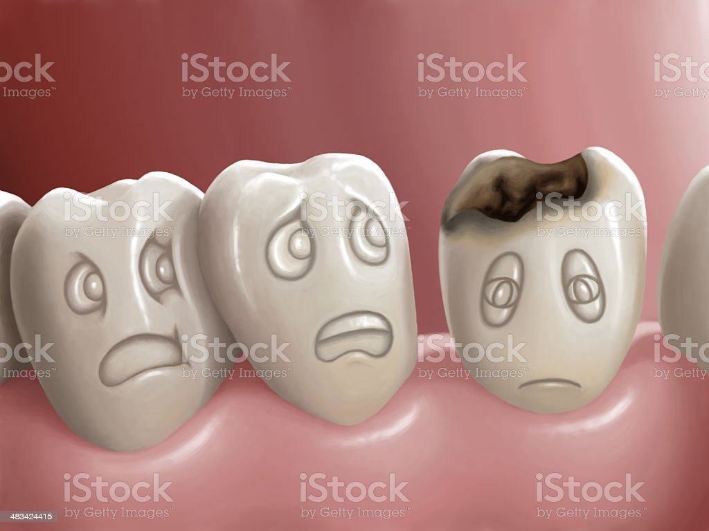 Dental caries vector art illustration