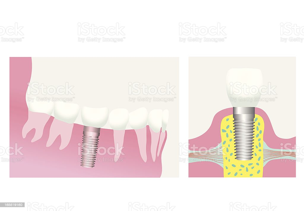 dental implant royalty-free stock vector art
