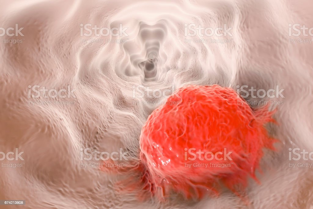 Esophageal cancer, illustration stock photo