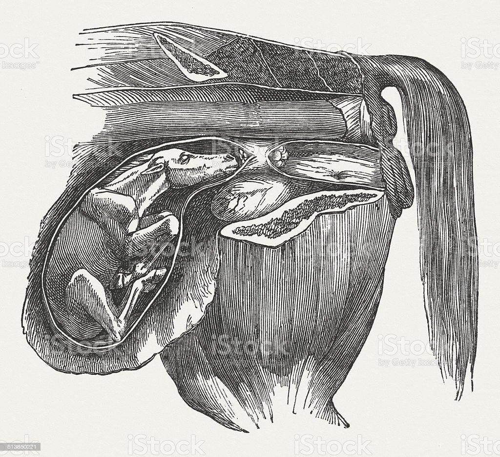 Fetus in incorrect position vector art illustration