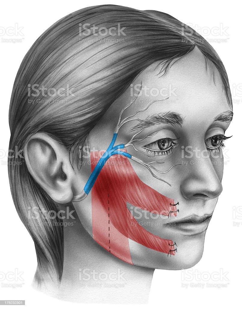 Frozen Face Surgery vector art illustration