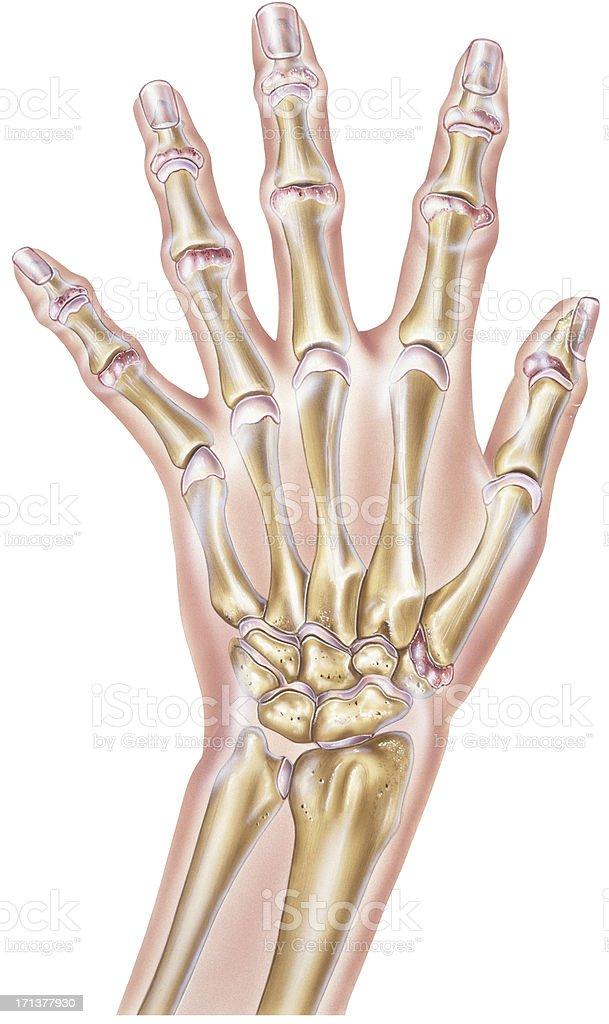 Hand - Rheumatoid Arthritis of the  Joints vector art illustration