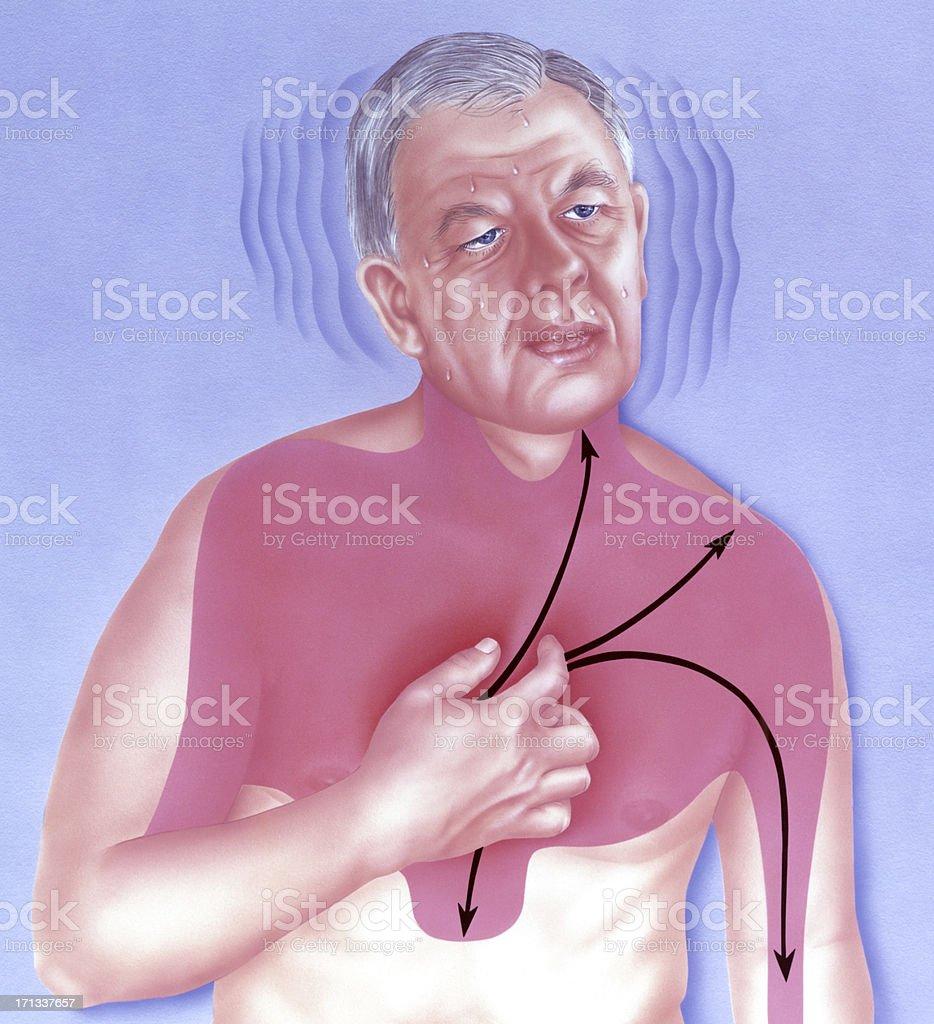 Heart - Attack Symptoms vector art illustration