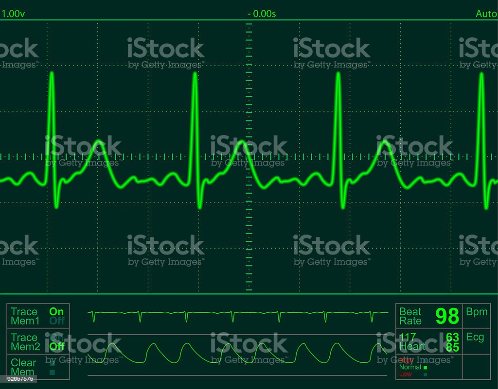 heart monitor screen royalty-free stock vector art