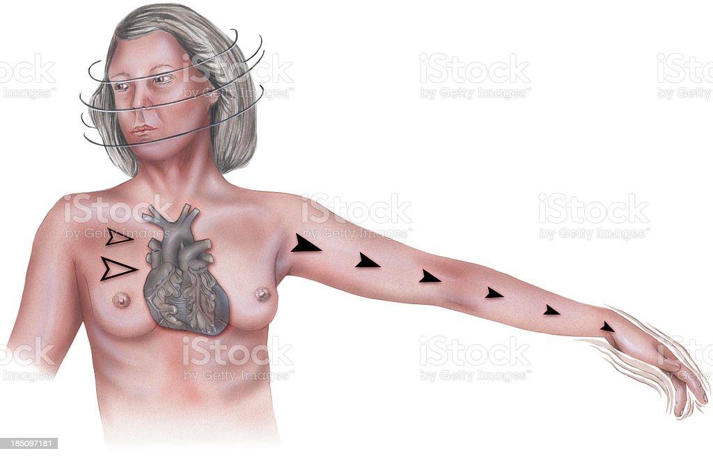 Heart - Palpitation Symptoms vector art illustration