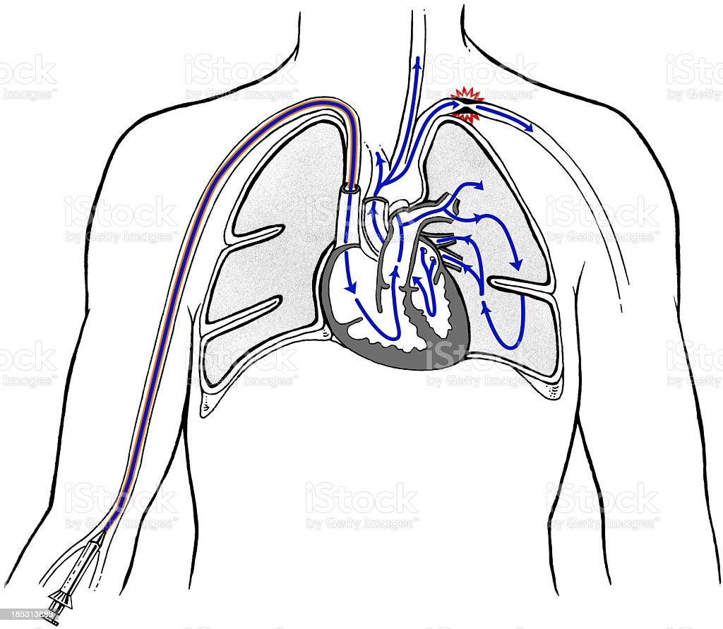 Heart - Venacava Dye Injection vector art illustration