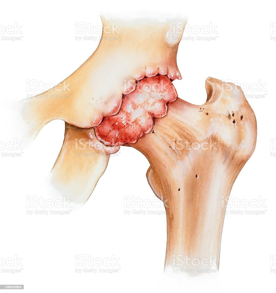 Human Hip with Osteoarthritis - Front View vector art illustration