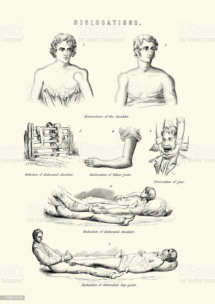 Human body - Dislocations vector art illustration
