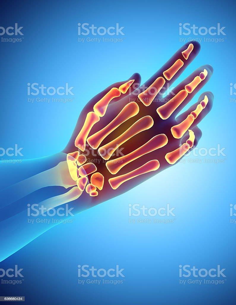 3D illustration of Hand Skeleton, medical concept. vector art illustration