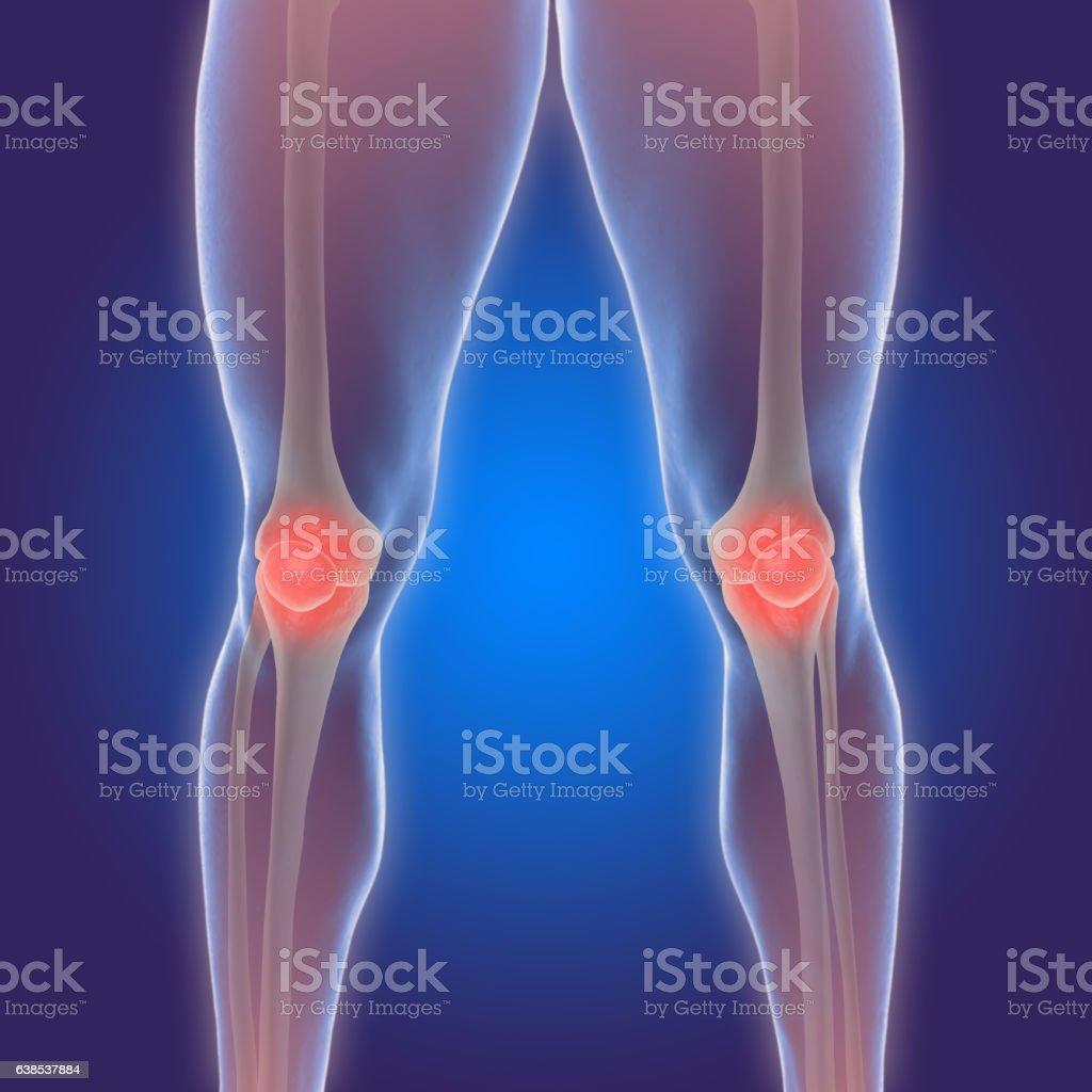 3D illustration of the human knee with arthritis pain vector art illustration