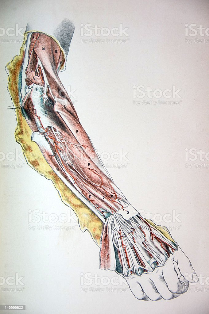 Lithograph Illustration of an Arm Being Dissected vector art illustration