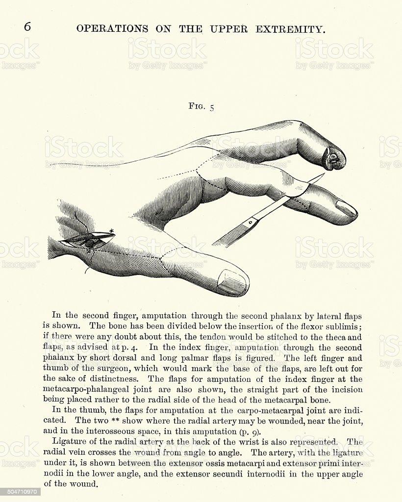 Medical History - Amputation of Fingers vector art illustration