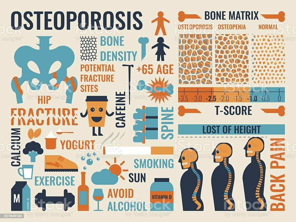 Osteoporosis vector art illustration