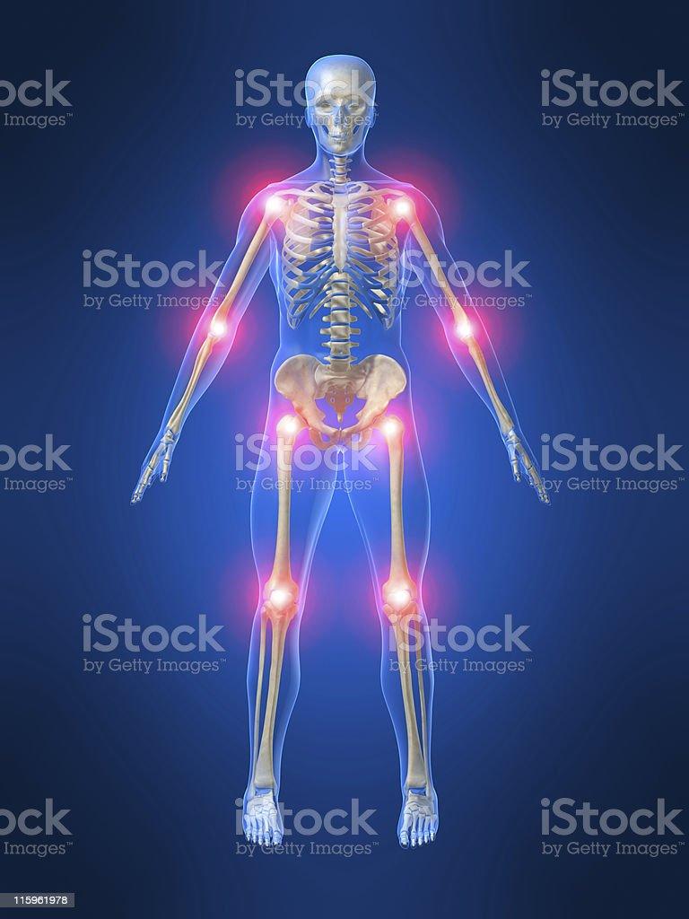 painful joints vector art illustration
