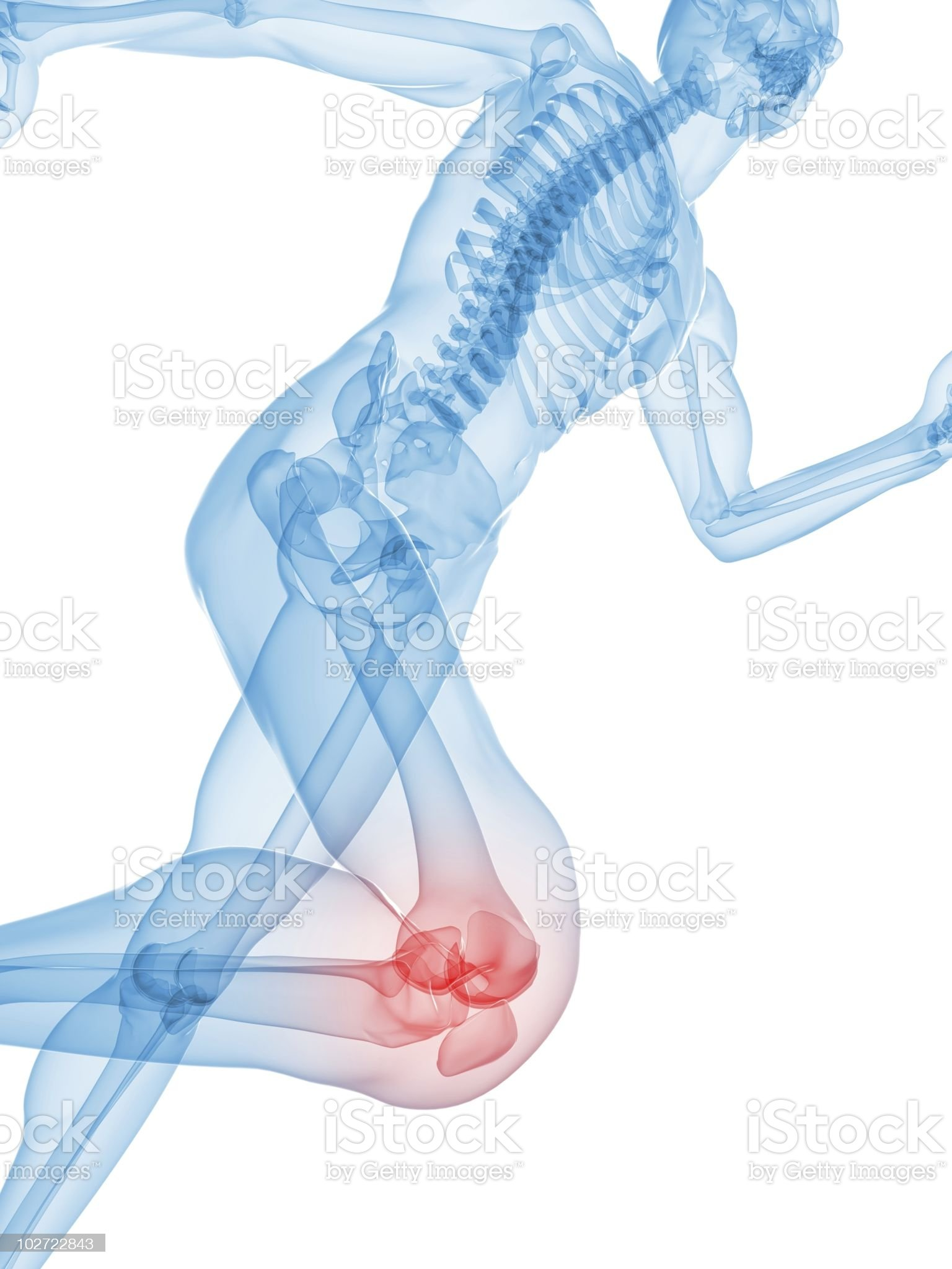 painful knee illustration royalty-free stock vector art
