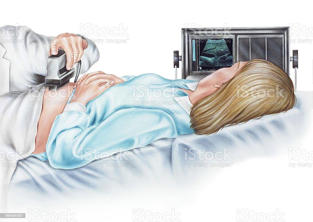 Pregnancy - Ultrasonogram of a Pregnant Woman vector art illustration