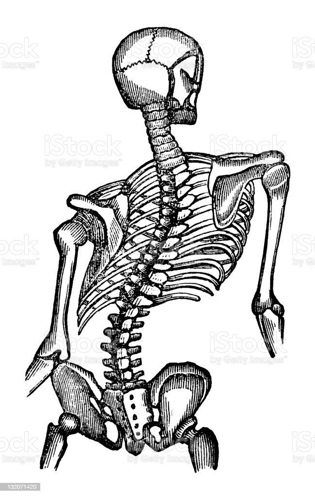 Scoliosis Skeleton royalty-free stock vector art