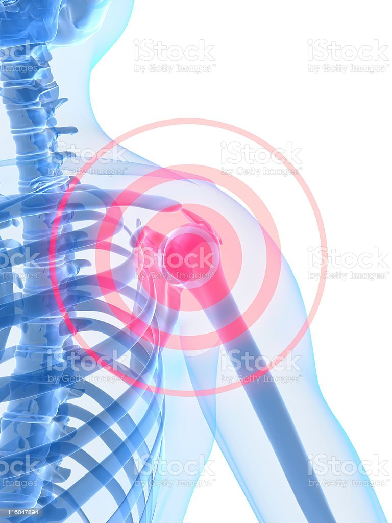 shoulder inflammation royalty-free stock vector art