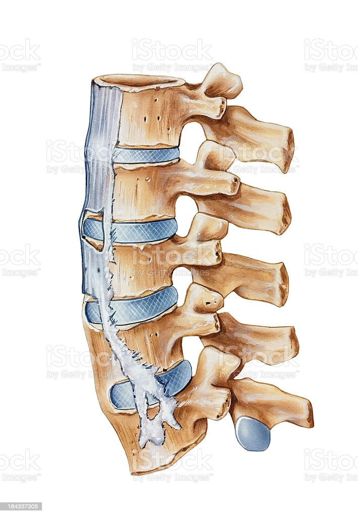 Spine - Ankylosing Spondylitis royalty-free stock vector art