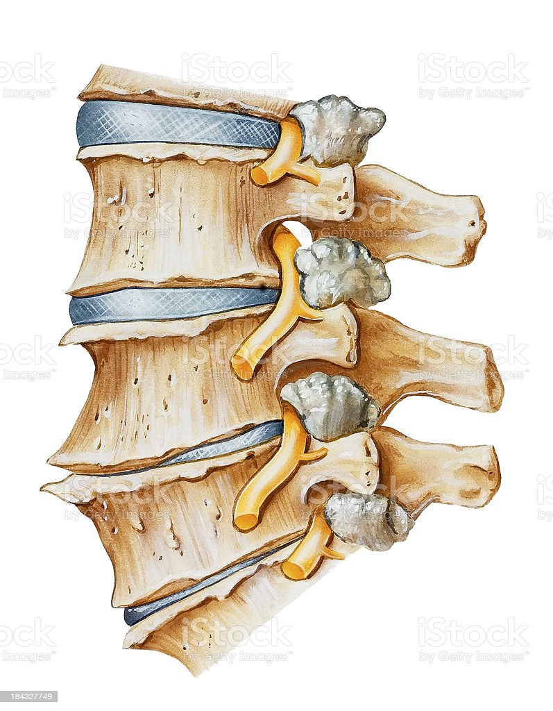 Spine - Lumbar Osteoarthritic and Spondylitic Arthritis vector art illustration