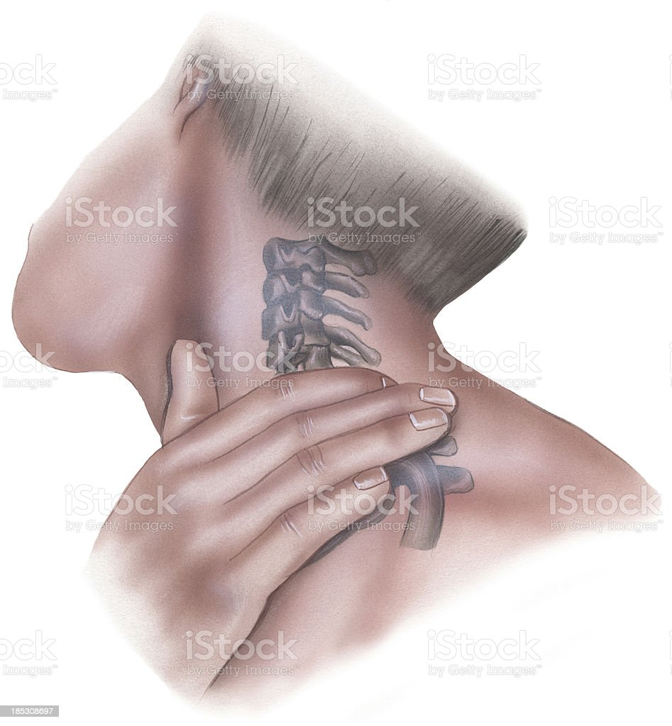 Spine - Pressure to Clavicle and Cervical Vertebrae Lateral View vector art illustration