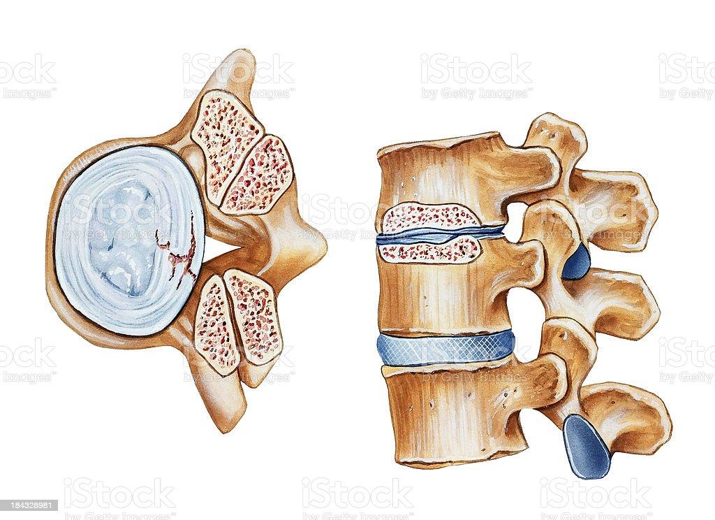 Spine - Spinal Stenosis vector art illustration