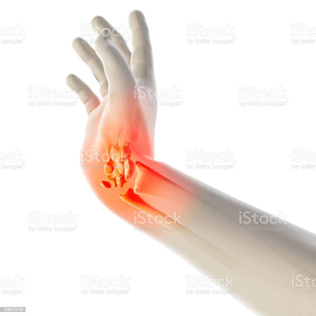 Wrist painful - skeleton x-ray. vector art illustration