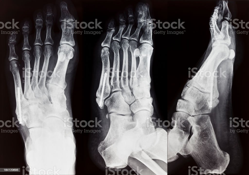 X-Ray right foot broken metatarsus fixed with screw royalty-free stock vector art