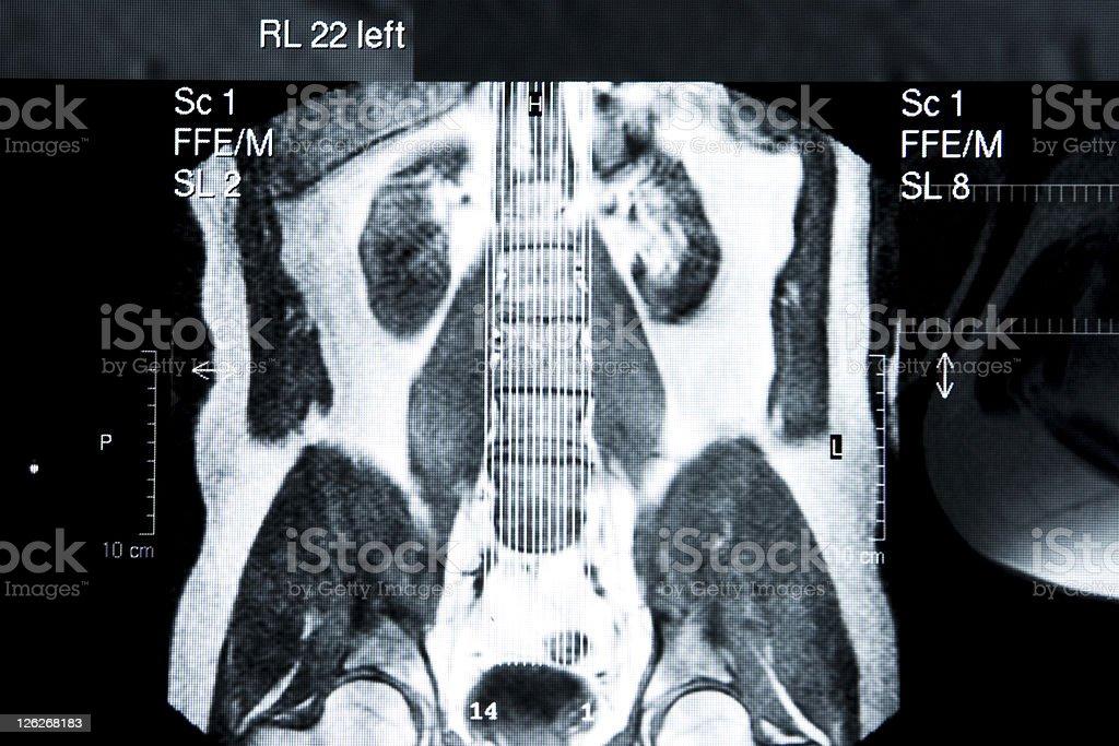 MRI royalty-free stock photo