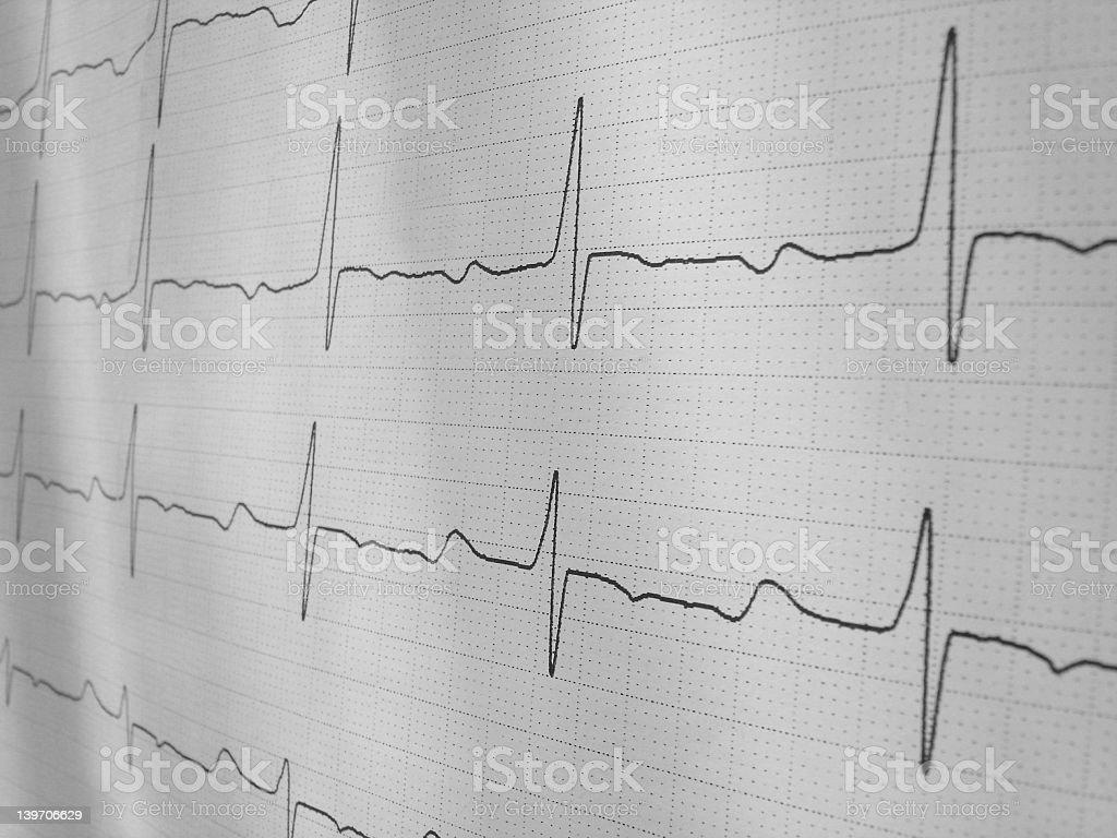 EKG royalty-free stock photo