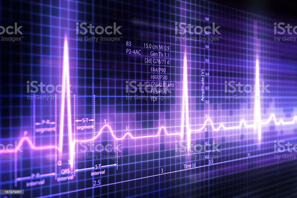 ECG royalty-free stock photo