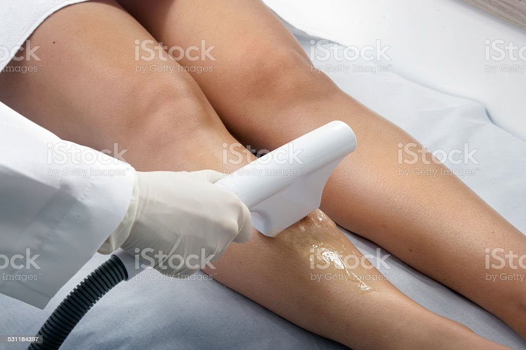 ELECTROLYSIS HAIR REMOVAL stock photo