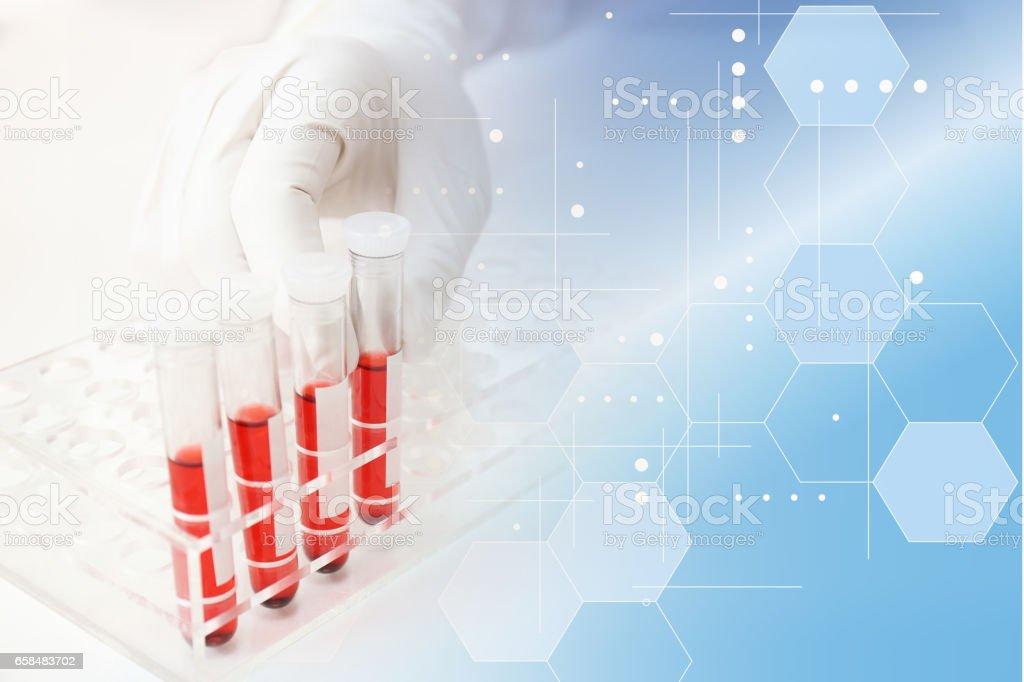 医療イメージ 血液検査 stock photo