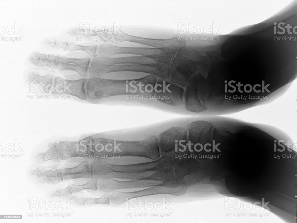 X RAY BODY PARTS royalty-free stock photo