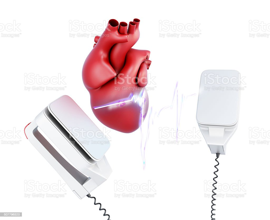 3d discharge of defibrillator and the heart. stock photo