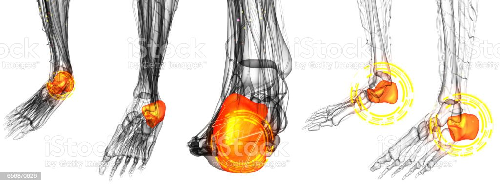 3d render illustration of the Human Foot Joint Pains vector art illustration