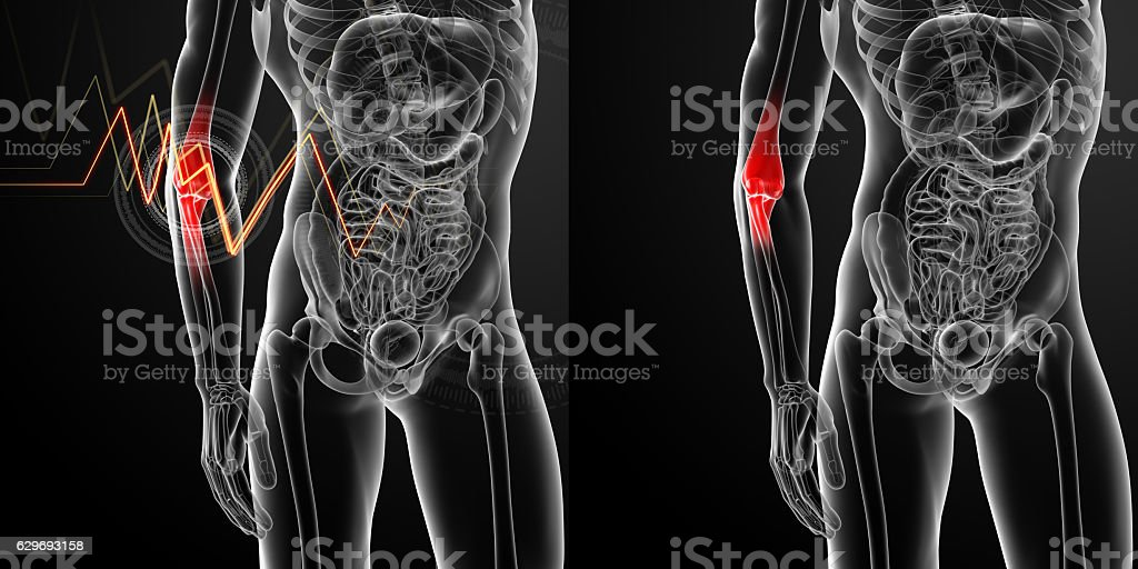 3d render medical illustration of the arm pain stock photo