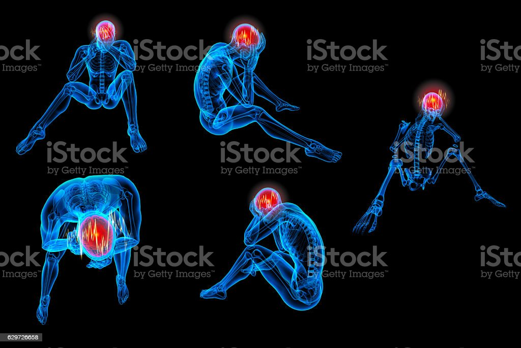 3d rendered human of a sitting - headache stock photo