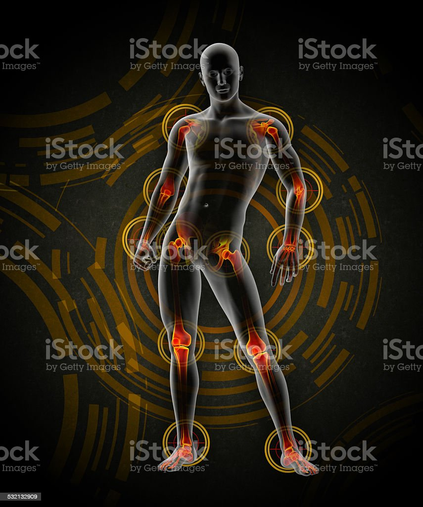 3d rendered medical illustration of a painful joint stock photo