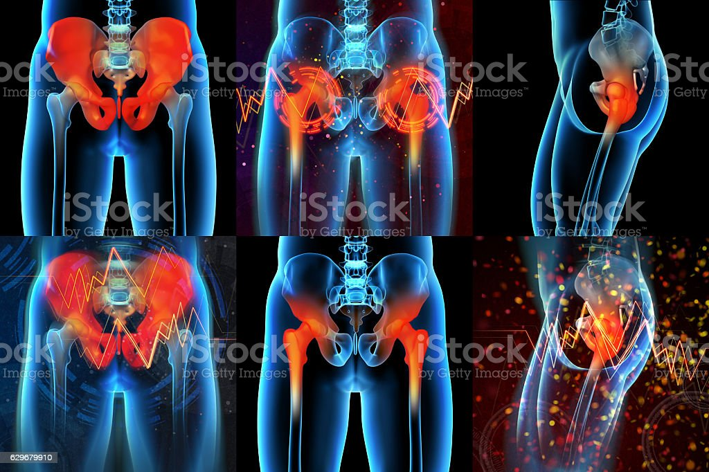 3d rendering  medical illustration of a painful sacrum stock photo