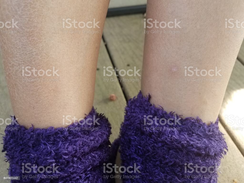 a woman's dry flaky itchy legs and purple socks stock photo