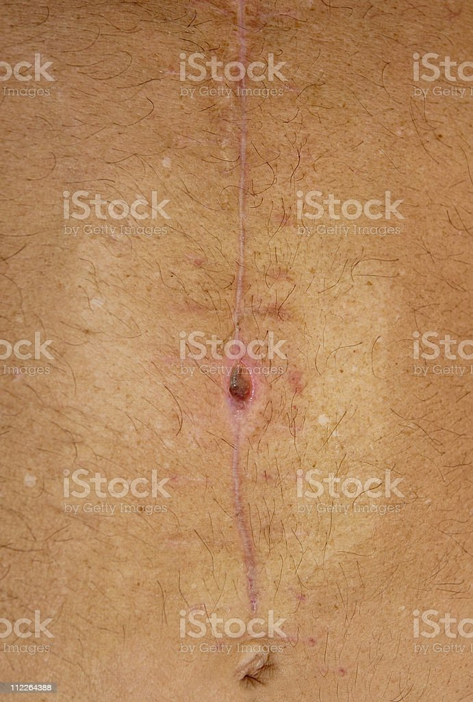 abdominal incision scar site with MRSA royalty-free stock photo
